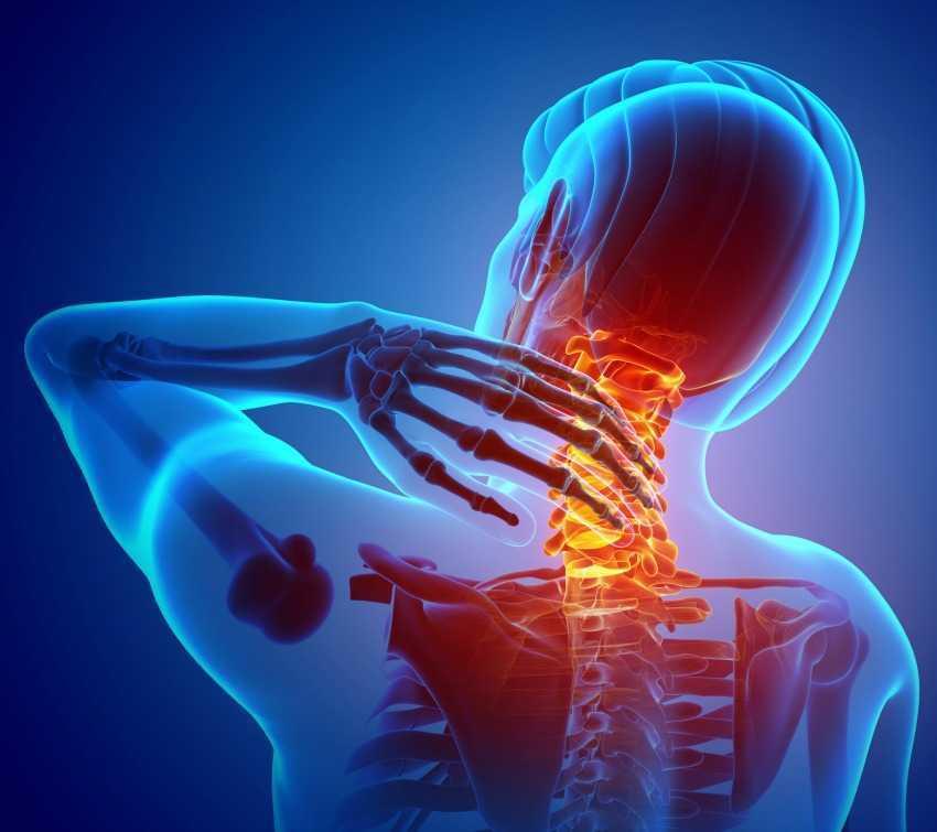 Chronic Neck Pain CGI